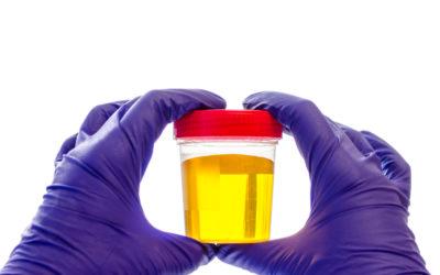 Urine opvangen bij hond of kat